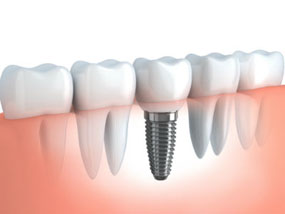 Implant Restoration | Dr. O'Leary | Dentist Peabody MA