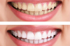 Teeth Whitening Available | Dr. O'Leary | Peabody MA Dentist